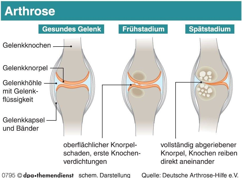 Der Gelenkerguss: Zu viel Flüssigkeit im Gelenk