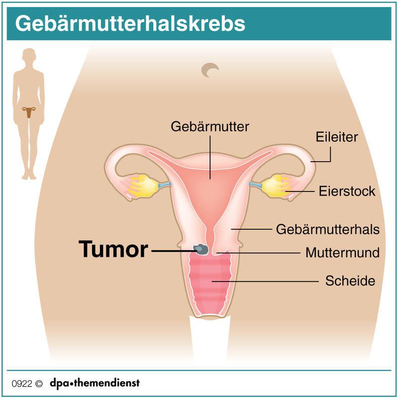 Gebärmutterhalskrebs: Tumore erkennen, bevor sie entstehen ...